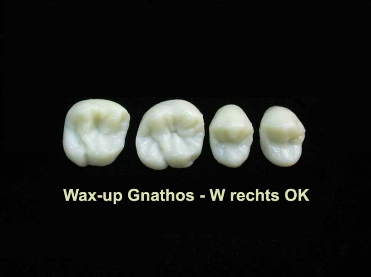 Wax-up Gnathos Quadrant