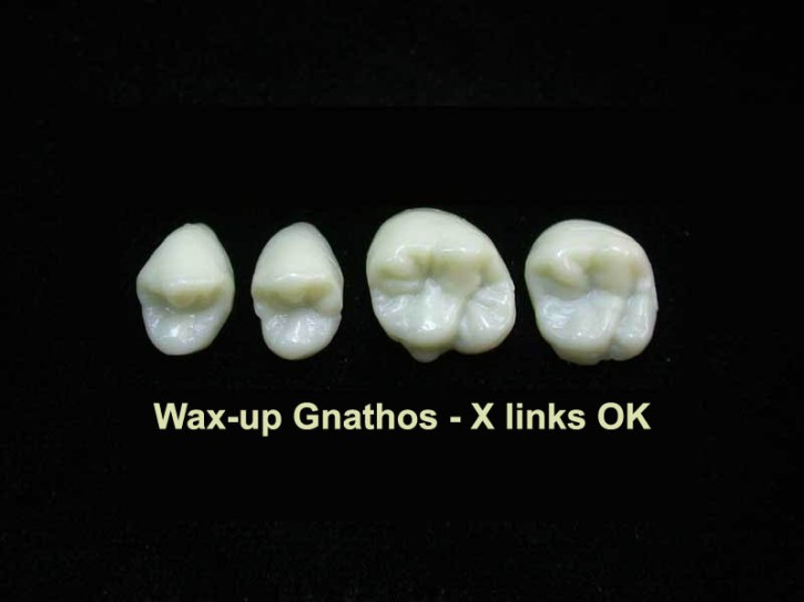 Wax-up Gnathos Quadrant