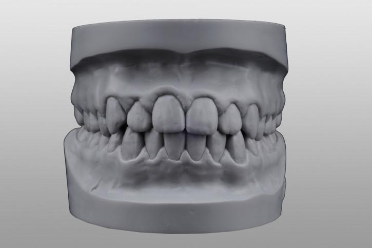 Study-Modell-Set Q3 grau