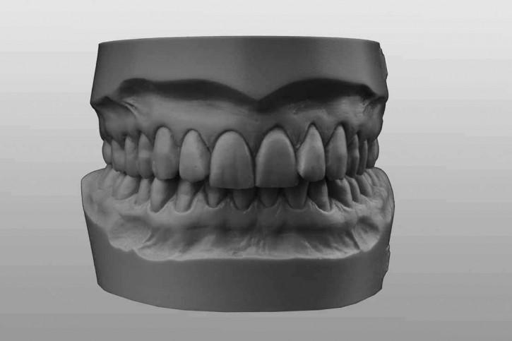 Study-Model-Set Q5 grey