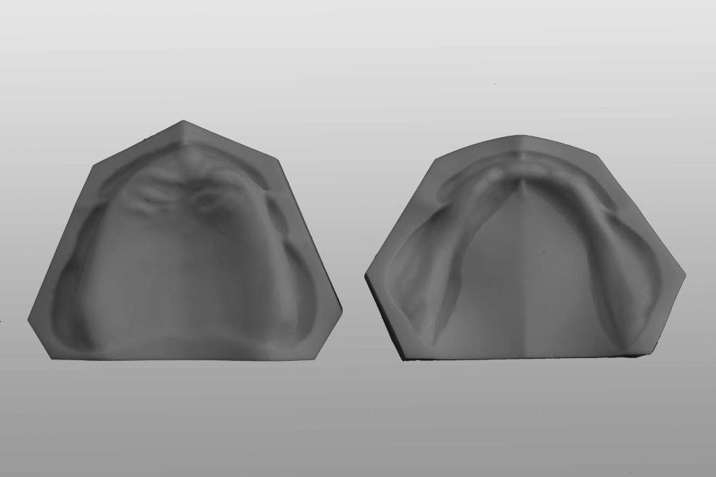 Zahnlose Modelle